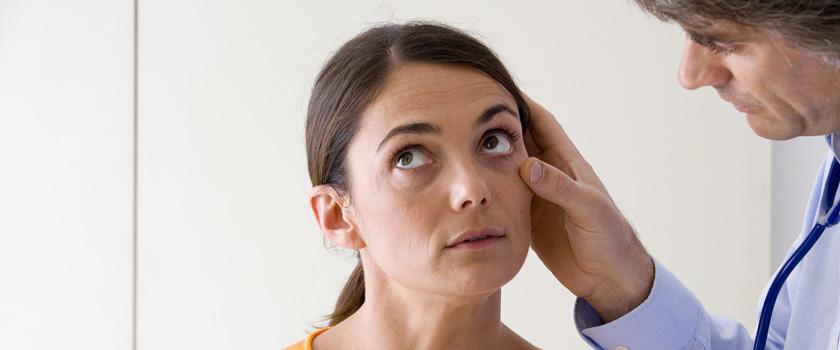 Wann muss ich mir über gelbe Augen Sorgen machen?