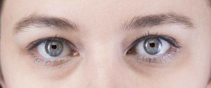 Augenringe entfernen: 9 Tipps für ein frischeres Aussehen
