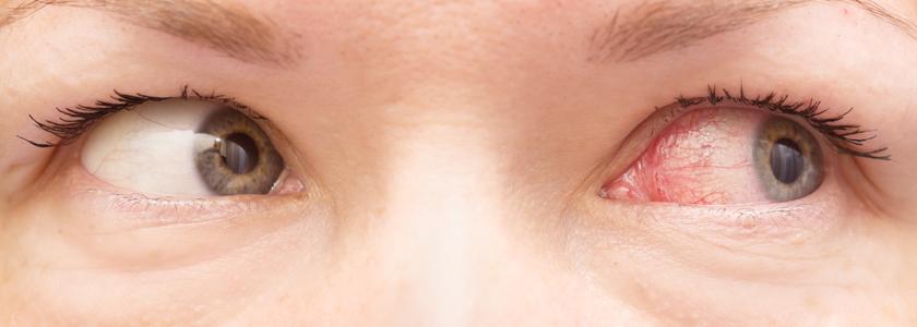 Rote Augen: Ursachen und Behandlung