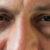 Gründe für geschwollene Augen